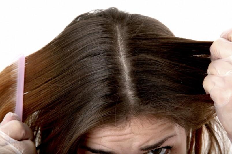 При себореи возникают неприятные симптомы, выпадают волосы, появляется неприятный зуд и шелушится кожа головы. Прежде чем начинать лечить это заболевание, обратитесь к врачу для выявления причины возникновения.