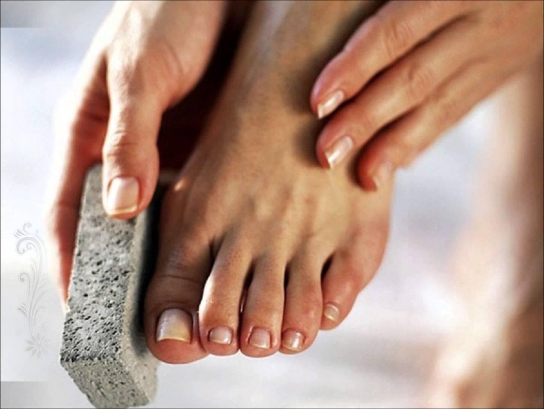 Как убрать косточку на ноге большого пальца в домашних условиях 77