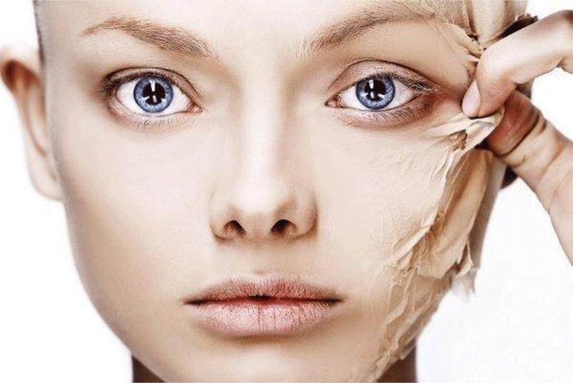 Прыщи - это воспаление кожи, при котором сальные железы под воздействием бактерий опухают и наполняются гноем.
