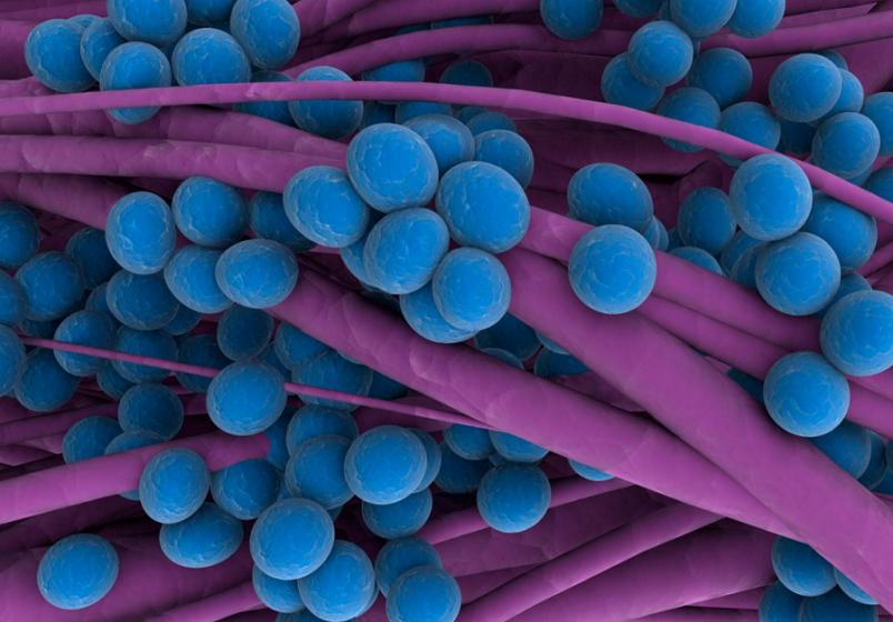 Стафилококками называются неподвижные бактерии шаровидной формы, под микроскопом располагающиеся в форме виноградных гроздьев.
