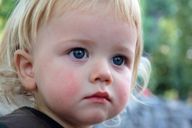 Зачастую причиной сыпи на коже ребенка является банальная аллергия.