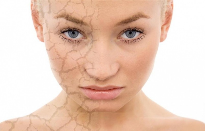 Наиболее проблематичными являются пятна на лице, поскольку это не эстетично и трудно поддается лечению