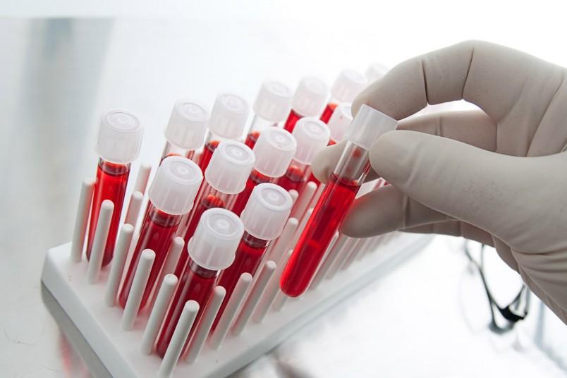 Высокий билирубин у новорожденного опасен тем, что он не весь блокируется белками крови и имеет возможность проникнуть в нервную систему малыша.