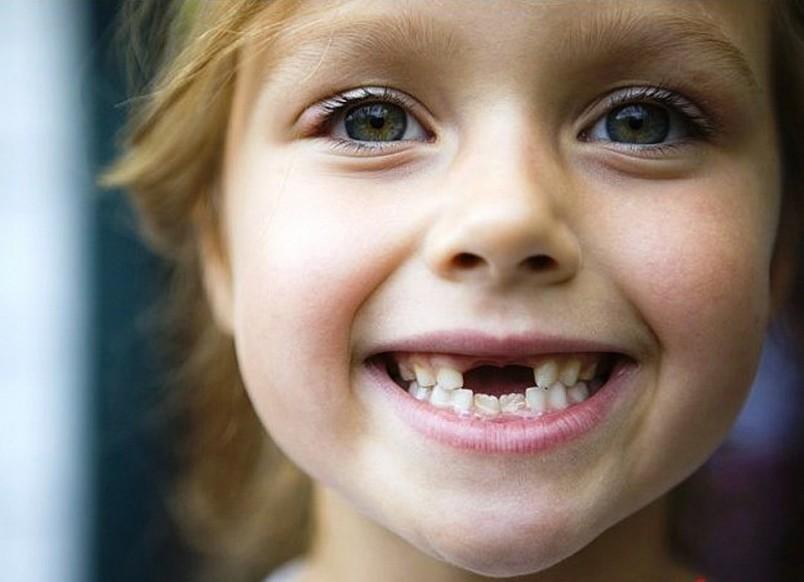 Появлению постоянных зубов предшествует физиологический процесс, во время которого корни молочных зубов рассасываются.