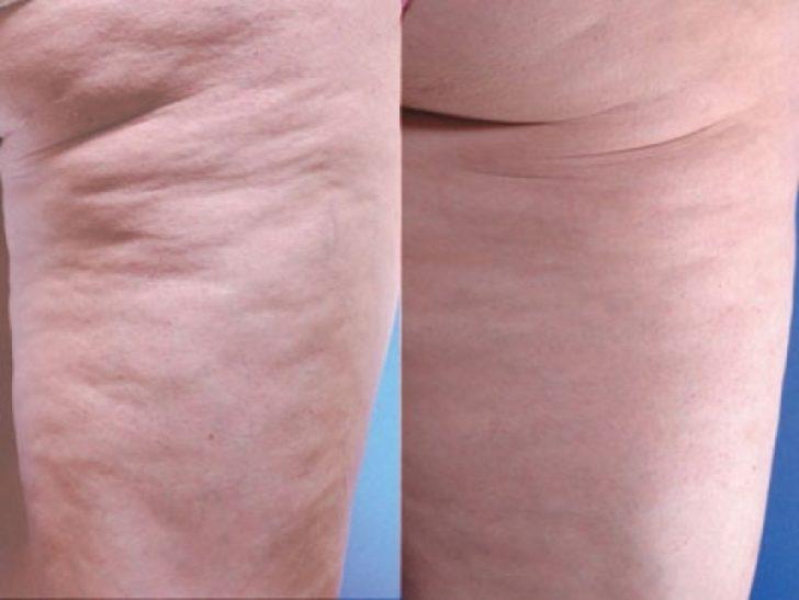 До и после комплексного лечения целлюлита, плюс массаж.